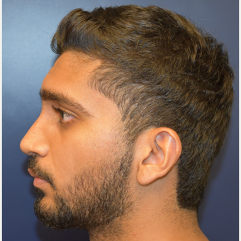 18-24 year old man treated with Rhinoplasty after 3226878