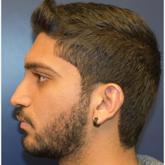 18-24 year old man treated with Rhinoplasty before 3226878
