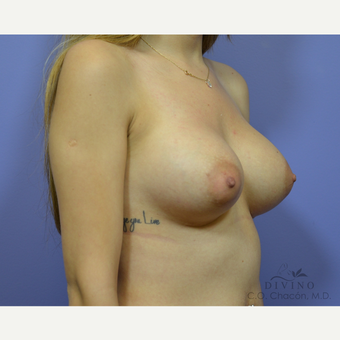 25-34 year old woman treated with Breast Implant Revision before 3421702