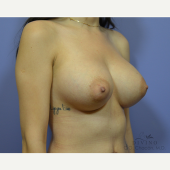 25-34 year old woman treated with Breast Implant Revision after 3421702