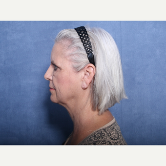 55-64 year old woman treated with Neck Lift (view 2 of 2) before 3179820