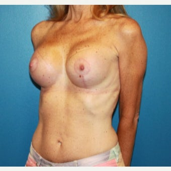55-64 year old woman treated with Breast Lift after 2303748