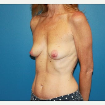 55-64 year old woman treated with Breast Lift before 2303748