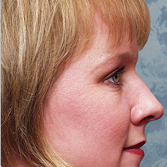 Rhinoplasty before 3124862