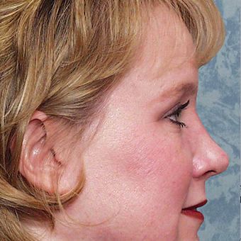 Rhinoplasty after 3124862
