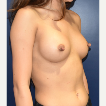 18-24 year old woman treated with Sientra Breast Implants after 3626370