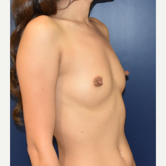 18-24 year old woman treated with Sientra Breast Implants before 3626370