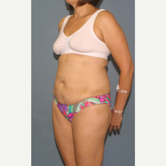 25-34 year old woman treated with Tummy Tuck before 3564271