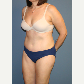25-34 year old woman treated with Tummy Tuck after 3564271