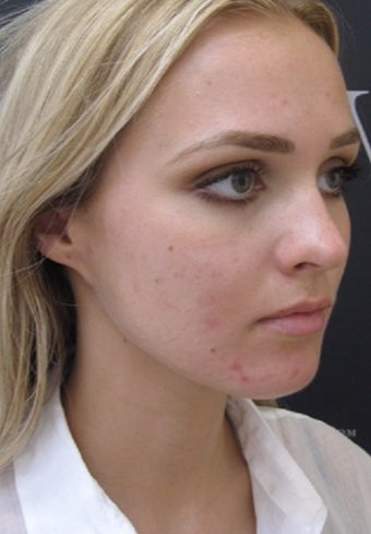 How to get rid off acne  before 3107761