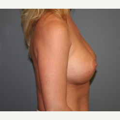 35-44 year old woman treated with Breast Implants after 3304017