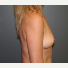 35-44 year old woman treated with Breast Implants before 3304017