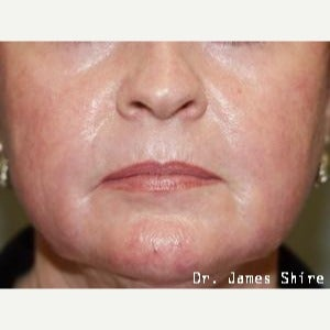 55-64 year old woman treated with Chemical Peel after 1547020