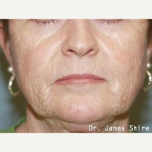 55-64 year old woman treated with Chemical Peel before 1547020