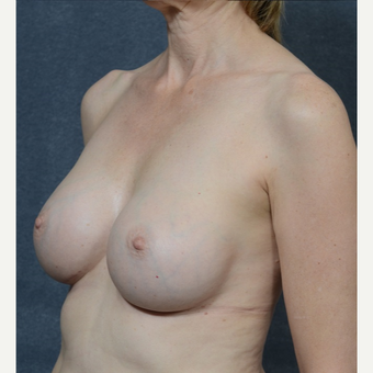 Breast Augmentation after 3816028