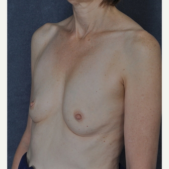 Breast Augmentation before 3816028