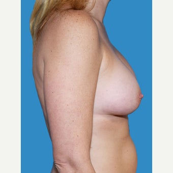 35-44 year old woman treated with Breast Augmentation after 2529699