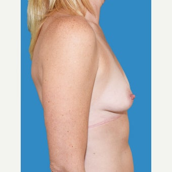 35-44 year old woman treated with Breast Augmentation before 2529699