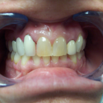 45-54 year old woman treated with Porcelain Veneers and gum plastic surgery