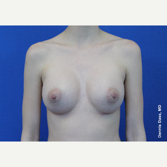 25-34 year old woman treated with Breast Augmentation after 3353043