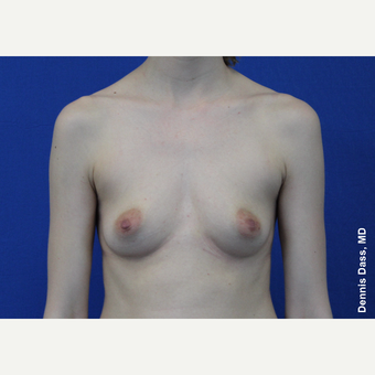 25-34 year old woman treated with Breast Augmentation before 3353043
