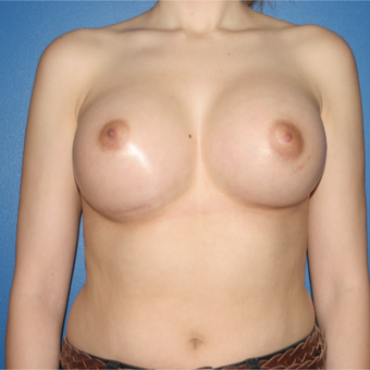 25-34 year old woman treated with Breast Implants after 3788579