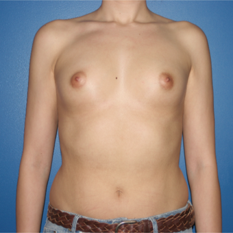 25-34 year old woman treated with Breast Implants before 3788579