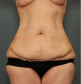 45-54 year old woman requesting Tummy Tuck after weight loss before 3070063