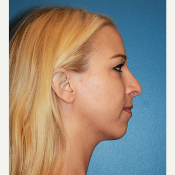 18-24 year old woman treated with Rhinoplasty before 3123327