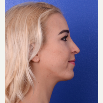 18-24 year old woman treated with Rhinoplasty after 3123327