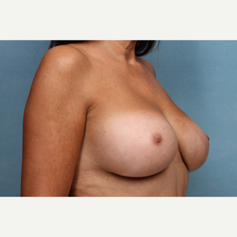 55-64 year old woman treated with Breast Augmentation after 3265299