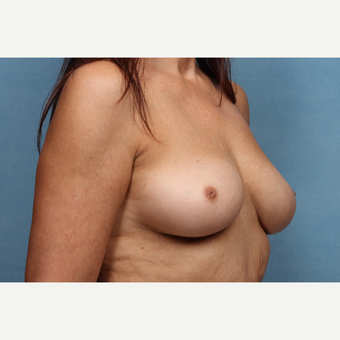55-64 year old woman treated with Breast Augmentation before 3265299