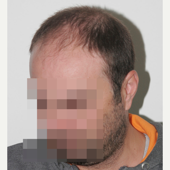 33 years old man treated with FUE Hair Transplant before 3068909