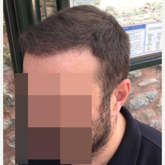 33 years old man treated with FUE Hair Transplant after 3068909