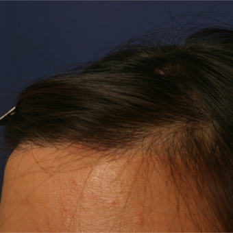18-24 year old woman treated with Forehead Reduction after 2749911