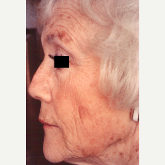 75 and up year old woman treated with Chemical Peel before 3543548