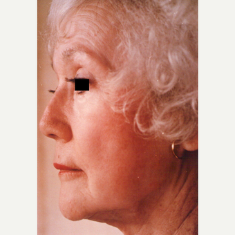 75 and up year old woman treated with Chemical Peel after 3543548