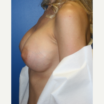 35-44 year old woman treated with Breast Implant Revision:  Saline to Silicone after 3788690