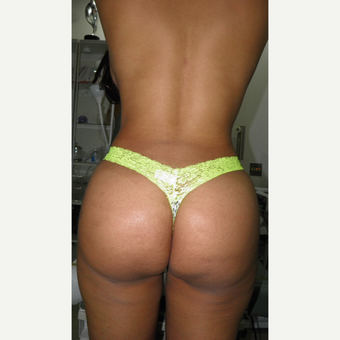 25-34 year old woman treated with Brazilian Butt Lift after 3103882