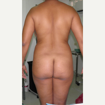 25-34 year old woman treated with Brazilian Butt Lift before 3103882