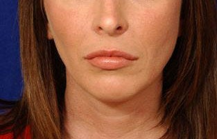 Before and After Lip Augmentation after 66153