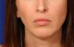 Before and After Lip Augmentation before 66153