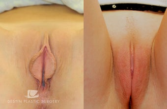 Labiaplasty  before 1518835