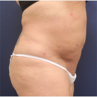 45-54 year old woman treated with Smart Lipo after 3235169