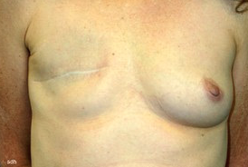 45-54 year old woman treated with Breast Reconstruction before 1675783