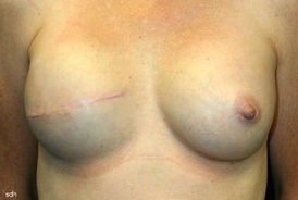 45-54 year old woman treated with Breast Reconstruction after 1675783