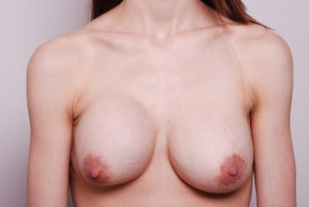 Breast augmentation revision after capsular contracture using Strattice before 342824