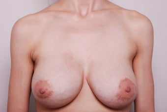 Breast augmentation revision after capsular contracture using Strattice after 342824
