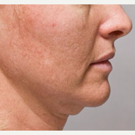 35-44 year old woman treated with Kybella before 3412333