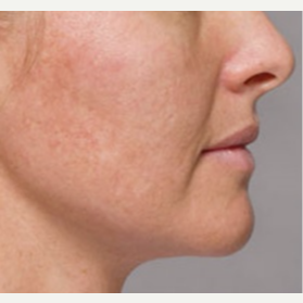 35-44 year old woman treated with Kybella after 3412333